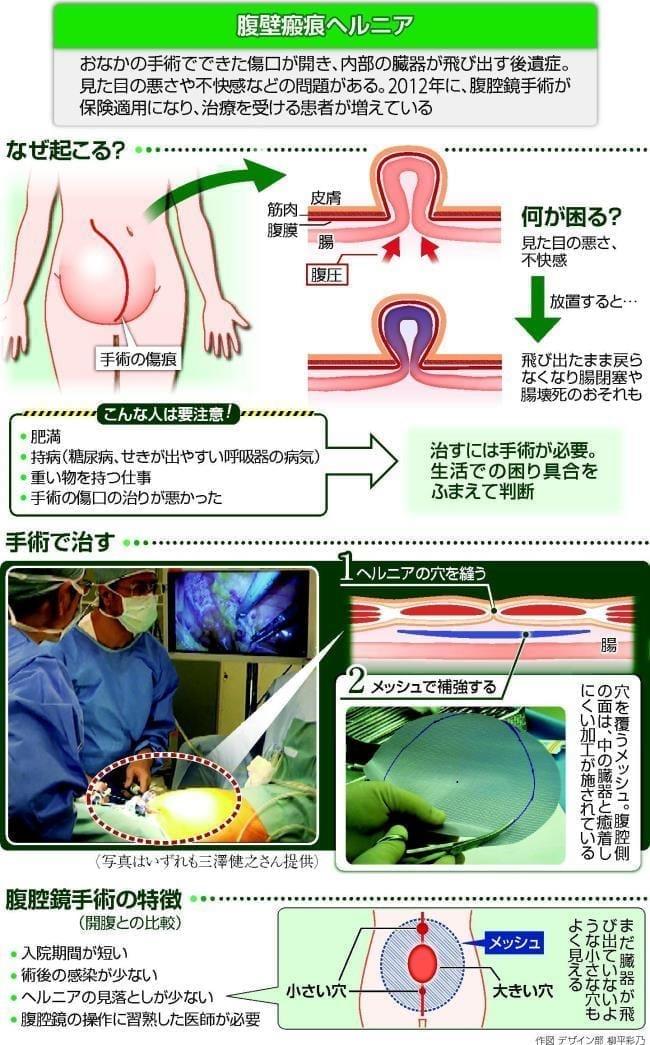 腹壁瘢痕ヘルニア…腹腔鏡手術で...
