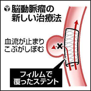 https://image.yomidr.yomiuri.co.jp/wp-content/uploads/2016/05/20160509-027-OYTEI50006-N.jpg