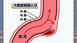 突然死を防ぐ<上>大動脈解離…血管の事故を起こさないために