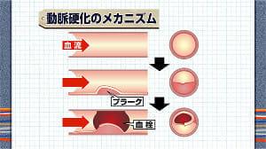 突然死を防ぐ<下>血管事故を引き起こす動脈硬化