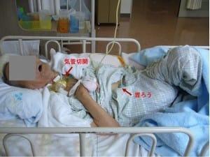 日本の高齢者の病棟。胃ろうが行われ、手足の関節は拘縮し、気管切開もされている。喀痰吸引や気管チューブ交換の時は、患者は体を震わせて苦しむ