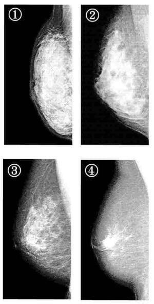 自分の型知り、乳がん検診…マンモグラフィー弱点も