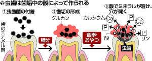 虫歯はなぜできる?…菌が糖を分解、歯溶かす酸
