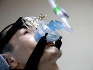 24時間鼻マスク式の人工呼吸器を付ける
