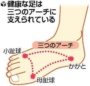 よく転ぶ子、足の変形注意
