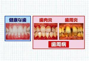 40歳以上の8割が歯周病患者…認知症や脳梗塞の原因にも?