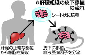 血友病に肝臓再生医療、細胞シートを皮下に移植…長崎大が研究