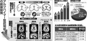 アルツハイマー型認知症の新薬開発…原因物質除去、失敗続く