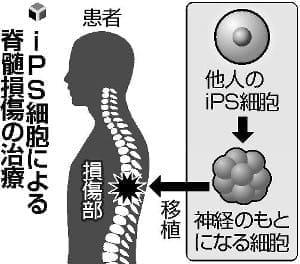 iPSで脊髄治療、来年にも…慶大が学内倫理委に申請