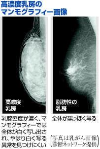 マンモグラフィーに向かない高濃度乳房…自治体が通知、超音波併用も