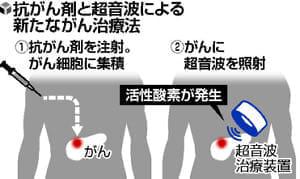 抗がん剤と超音波の二重攻撃、膵臓がん死滅…東京女子医大が新治療法研究