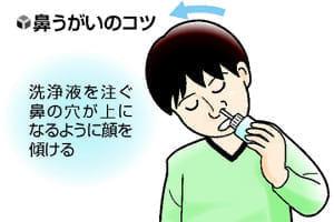 [鼻をいたわる](2)鼻うがいの正しい方法