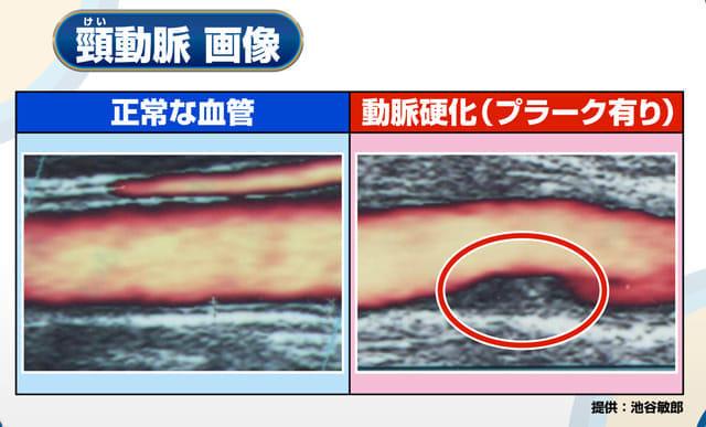 図5 BS日テレ「深層NEWS」より