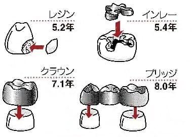 虫歯治療後の詰め物、かぶせ物の寿命(岡山大学・森田学教授)