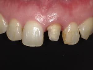 感染した部位を削り、形を整えて小さくなった歯