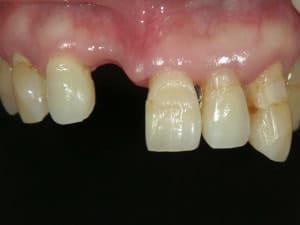 虫歯で失われた歯