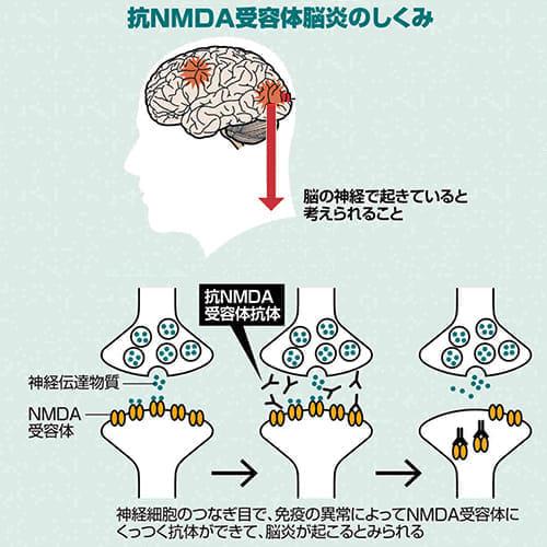 20170809-nmda2
