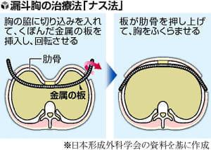 形成外科で治す(3)へこんだ胸 金属板で矯正