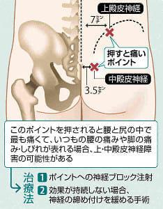 治らない腰痛…お尻のでっぱり部分を押すと痛むなら「上・中殿皮神経」原因か