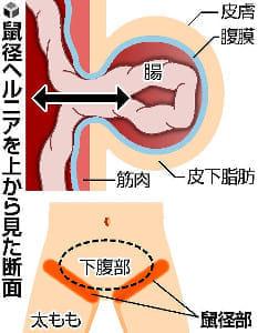 腸がはみ出る病気(1)鼠径ヘルニアを腹腔鏡で