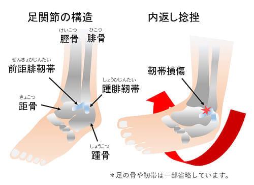 「足 捻挫」の画像検索結果
