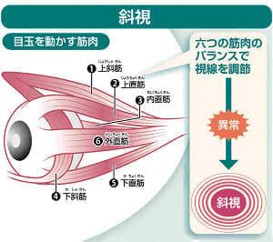 日本人2~3%「斜視」発症…視覚発達妨げる危険性、脳腫瘍など大病のサインも