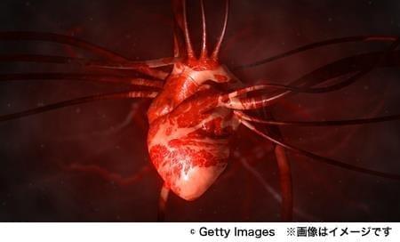 脳梗塞のリスクになる「心房細動」って知っていますか?