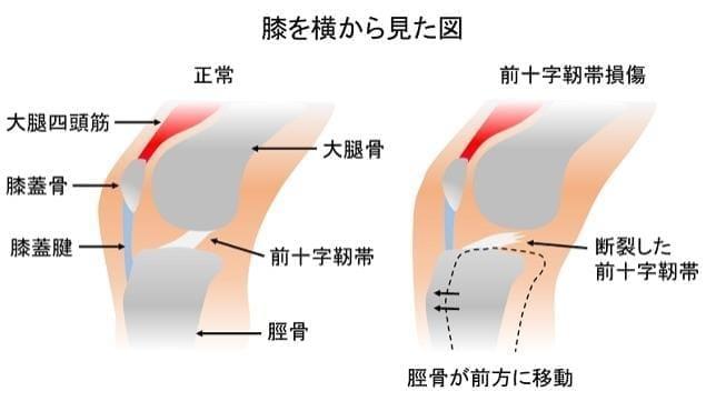 手術後は段階的にリハビリを -前十字靭帯損傷-