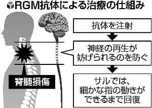 脊髄損傷の新薬治験、阪大など2019年から