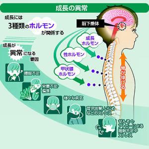 子どもの背がなかなか伸びない「低身長」…骨の発育中に、ホルモン注射を