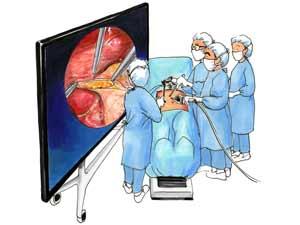 ヨミドクター 知りたい! 世界初、8K内視鏡を実用化…医工連携で日の丸ベンチャー-300-225