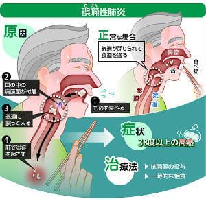 食べ物が気道に入り重症化も誤嚥性肺炎パタカラ体操で予防を