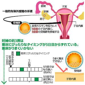 体外受精、子宮内膜を検査…着床に最適な時期計る