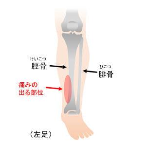 マラソン選手に多い「すねの痛み」の正体