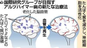 認知症、脳血管を若返らせて回復図る…新治療法開発目指し研究グループ発足へ
