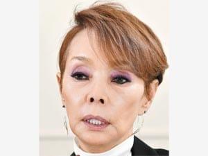 ヨミドクター一病息災  [歌手 研ナオコさん]片頭痛と橋本病(1)突然だるさに襲われken-naoko-300-225
