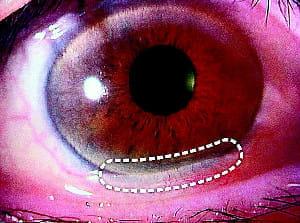 目の治療のいま(4)涙目の「結膜弛緩」に手術