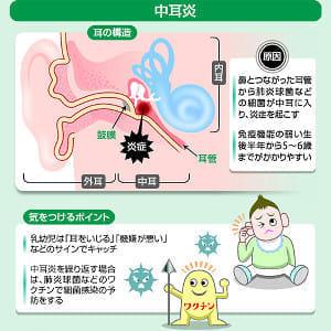 【中耳炎】痛み・うみを放置すると難聴に…細菌が炎症起こし鼓膜切開も