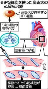 iPSから作った心筋を注入、心臓病治療…慶大チームが臨床計画