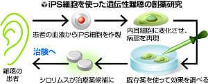 遺伝性難聴にiPS創薬…慶大、来月から治験