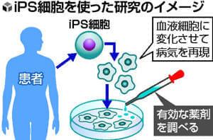 和歌山・大阪に患者が集中する難病「中條・西村症候群」…薬の候補を発見