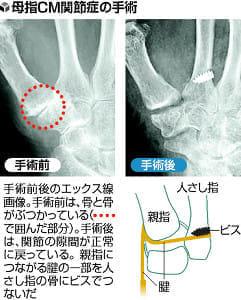 手のトラブル(4)親指亜脱臼 動き温存手術
