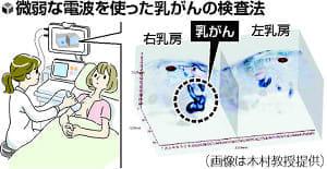 痛くない!乳がん検査…微弱電波で立体画像、来年度中に治験目指す