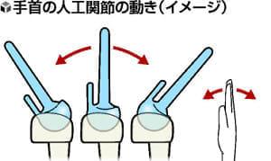 手のトラブル(5)手首人工関節 動きやすく