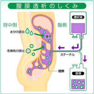 自宅や職場で「腹膜透析」…生活に合わせて選ぶ透析治療