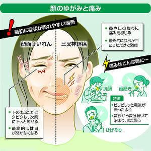 顔のゆがみと痛み、神経を圧迫する血管を手術で解消…虫歯・目の疲れとの誤認に注意