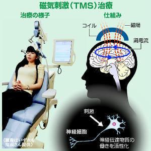 うつ病、頭に磁気刺激治療…電流で神経機能回復