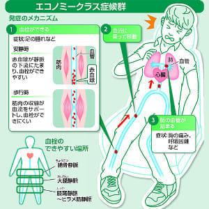 エコノミークラス症候群…同じ姿勢6時間で血栓リスク、水分取り足の運動を