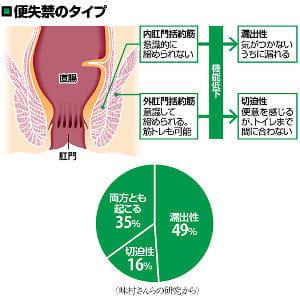 便失禁には「漏出性」「切迫性」の2種…服薬で直腸から出し切る