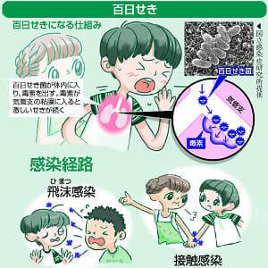 せきが長く続く「百日せき」…主に飛沫で感染、乳幼児は重症化しやすく